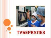 ТУБЕРКУЛЕЗ НЕМНОГО ИСТОРИИ Туберкулез известен с очень