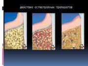 Действие остеотропных препаратов Средства для остеогингивопластики -Тутопласт