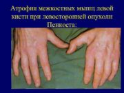 Атрофия межкостных мышц левой кисти при левосторонней опухоли
