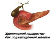 Хронический панкреатит Рак поджелудочной железы ОСТРЫЙ ПАНКРЕАТИТ