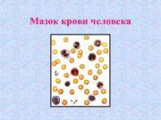 Мазок крови человека Эритроциты различной формы 1