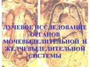 ЛУЧЕВОЕ ИССЛЕДОВАНИЕ ОРГАНОВ МОЧЕВЫДЕЛИТЕЛЬНОЙ И ЖЕЛЧЕВЫДЕЛИТЕЛЬНОЙ СИСТЕМЫ