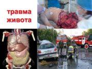 травма живота ТРАВМА ЖИВОТА Повреждения органов живота