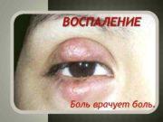 ВОСПАЛЕНИЕ Боль врачует боль ОБЩАЯ ХАРАКТЕРИСТИКА ВОСПАЛЕНИЯ
