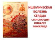 ИШЕМИЧЕСКАЯ БОЛЕЗHЬ СЕРДЦА СТЕНОКАРДИЯ ИНФАРКТ МИОКАРДА определение