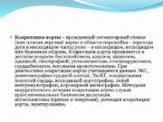 Коарктация аорты врожденный сегментарный стеноз или