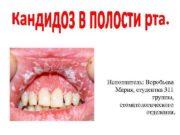 Исполнитель Воробьева Мария студентка 311 группы стоматологического отделения