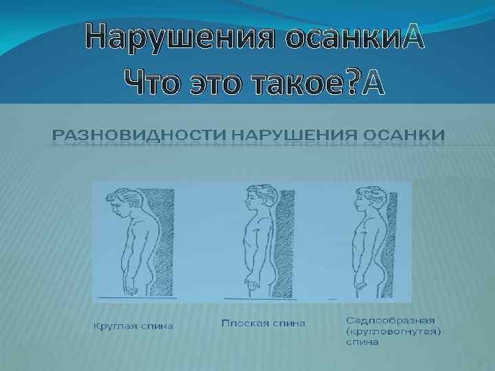 Профилактика нарушения осанки и заболеваний позвоночника и ...   540x720