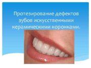 Протезирование дефектов зубов искусственными керамическими коронками Классификация
