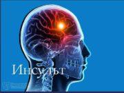 Инсульт Инсульт острое нарушение мозгового кровообращения