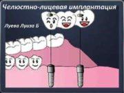 Челюстно-лицевая имплантация Луева Луиза Б