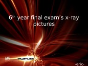 6 th  year final exam's x-ray pictures