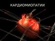 Презентация 7. миокардиты и кардиомиопатии
