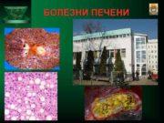 БОЛЕЗНИ ПЕЧЕНИ МАКРО-МИКРОСКОПИЧЕСКОЕ СТРОЕНИЕ ПЕЧЕНИ Синусоиды Центральная