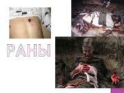 РАНЫ Рана — повреждение тканей или органов