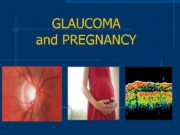 GLAUCOMA and PREGNANCY HISTORICAL ASPECTS THE GLAUCOMA