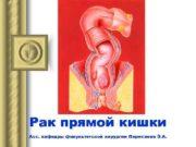 Рак прямой кишки Асс кафедры факультетской хирургии Перисаева