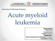 Department of Pathological Anatomy Acute myeloid leukemia Prepared