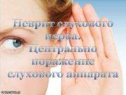 Неврит слухового нерва Центрально поражение слухового аппарата