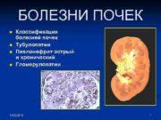 БОЛЕЗНИ ПОЧЕК n n Классификация болезней почек Тубулопатии