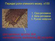 Передні роги спинного мозку х100 1 Сіра речовина