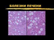 БОЛЕЗНИ ПЕЧЕНИ Печеночный ацинус z -Первая зона-