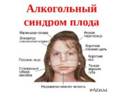 Алкогольный синдром плода  Алкогольный синдром плода –