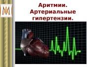 Презентация aritmii_AG