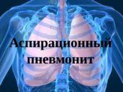 Аспирационный пневмонит  Определение  Аспирация – попадание