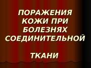 ПОРАЖЕНИЯ КОЖИ ПРИ БОЛЕЗНЯХ СОЕДИНИТЕЛЬНОЙ ТКАНИ  Красная