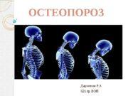 Дарменов Р. А 621 гр ВОПОСТЕОПОРОЗ  Остеопороз