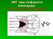 Презентация ekg pri infarkte miokarda