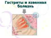 Гастриты и язвенная болезнь   Лауреатами Нобелевской