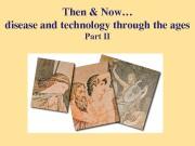 Then&Now… diseaseandtechnologythroughtheages PartII  AncientGreece 776BC  •