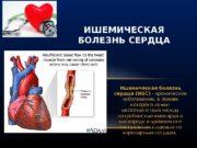 Ишемическая болезнь сердца (ИБС) — хроническое заболевание, в