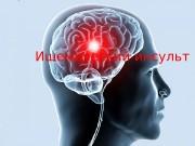 Ишемический инсульт  Острое нарушение мозгового крово вообращения