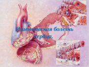 Ишемическая болезнь сердца.   Коронарные артерии –