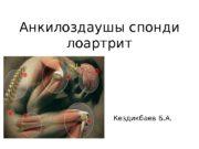 Анкилоздаушы спонди лоартрит Кездикбаев Б. А.