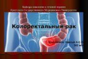Кафедра онкологии и лучевой терапии Иркутского Государственного Медицинского