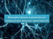 Компрессионно-ишемические нейропатиии верхних конечностей 01 09  Основные