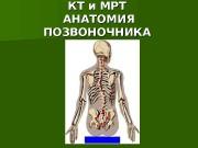 Презентация kt i mrt anatomiya pozvonochnika