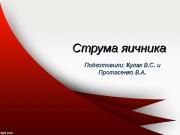 Презентация Кулак и Протасенко Струма яичников