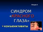 Презентация Лекция КОНЪЮНКТИВИТЫ packed
