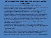 Актиномикоз языка КРС (актиномикозная гранулема)  Это специфическое