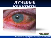 ЛУЧЕВЫЕ КЕРАТИТЫ   Выполнила: врач-интерн Максименко Е.