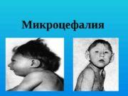 Микроцефалия  Микроцефалия  (от греч. μικρός —
