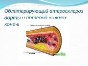 Презентация Облитерирующий атеросклероз. сосудов нижних конечностей Горфинкель И.В.