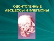 Презентация ОДОНТОГЕННЫЕ АБСЦЕССЫ И ФЛЕГМОНЫ
