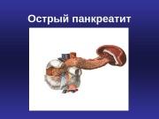 Презентация Острый панкреатит Горфинкель И. В.