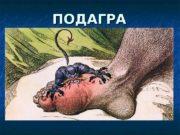 ПОДАГРА  Подагра  – системное тофусное заболевание,